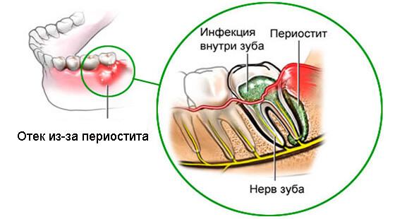 Воспаление верхней челюсти