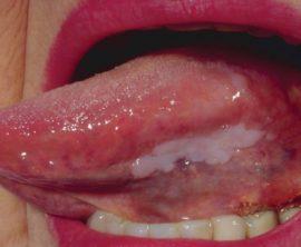 Плоская лейкоплакия языка