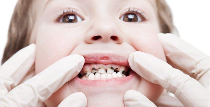 Почерневшие после серебрения молочные зубы