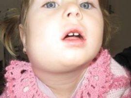 Подчелюстной лимфаденит у ребенка