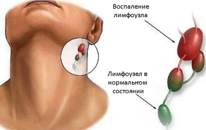 Подчелюстной лимфоузел в нормальном и воспаленном состоянии