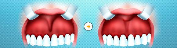Подрезание уздечки верхней губы