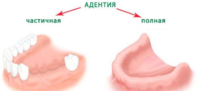 Полная и частичная адентия