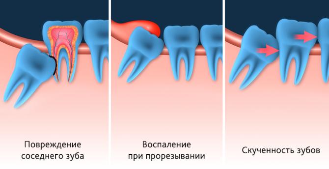 Последствия неправильного роста зуба мудрости