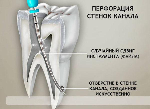 Повреждение стенки канала во время депульпирования