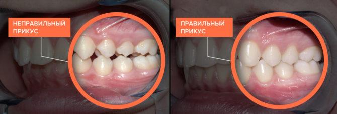 Правильный и неправильный прикус зубов