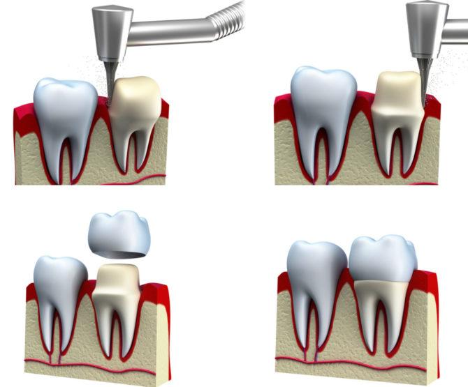 Препарирование зуба под коронку из металлокерамики