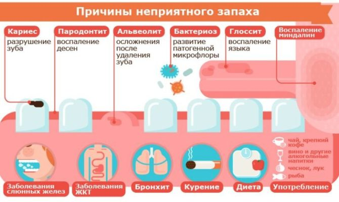Причины галитоза