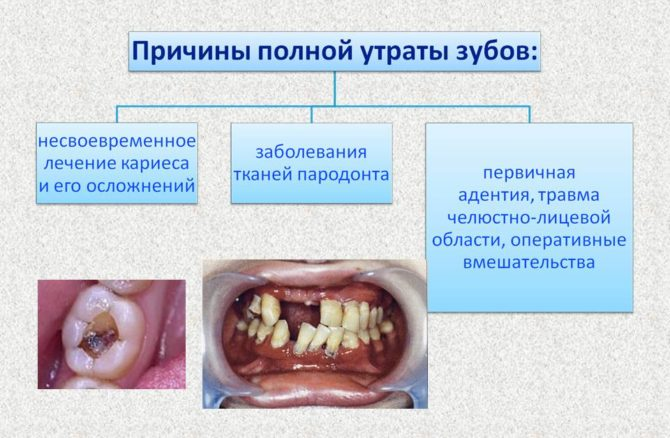 Причины полной утраты зубов