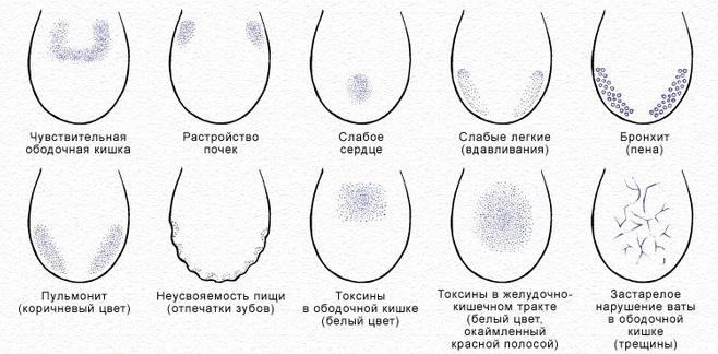 Причины трещин и изменения окраса языка