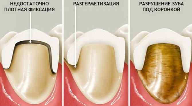 Причины возникновения зубной боли под коронкой