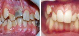 Примеры вестибулярной и медиальной дистопии зуба