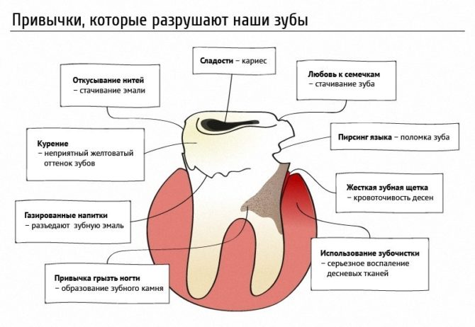 Привычки, разрушающие зубы