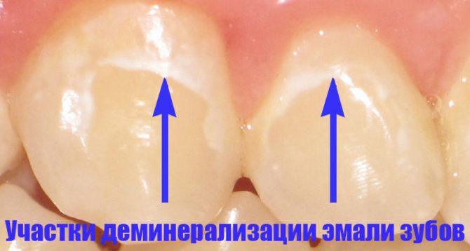 Признак деминерализации эмали зуба