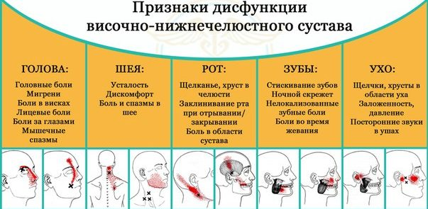 Признаки дисфункции височно-нижнечелюстного сустава