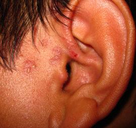 Признаки герпеса в ухе