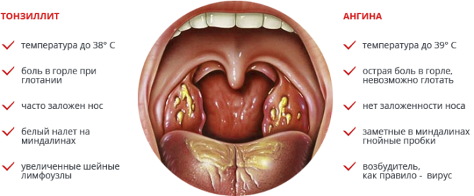 Признаки хронического тонзиллита и ангины