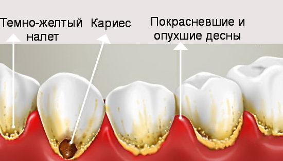 Признаки и последствия налета на зубах