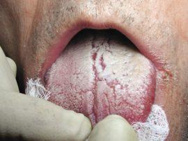 Признаки кандидоза полости рта