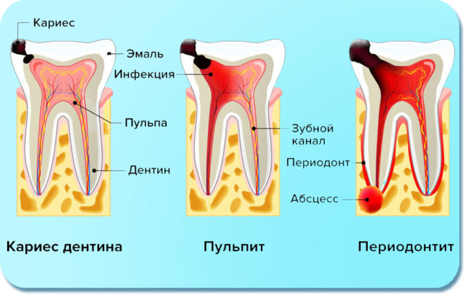 Признаки кариеса, пульпита и периодонтита