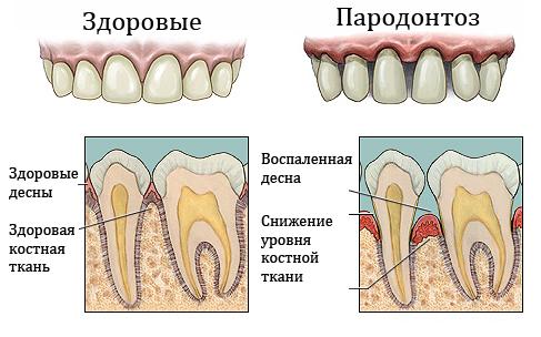 Признаки пародонтоза