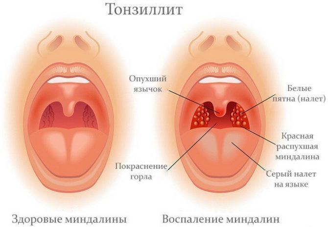 Признаки тонзиллита