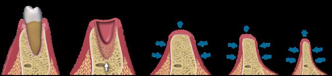Прогрессирующая атрофия костной ткани задействованной челюсти