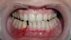 Промежутки в зубном ряду при переломе челюсти