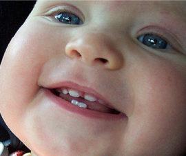 Прорезывание верхних клыков у ребенка