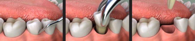 Простое удаление зуба