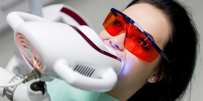 Процедура по отбеливанию зубов методом ZOOM