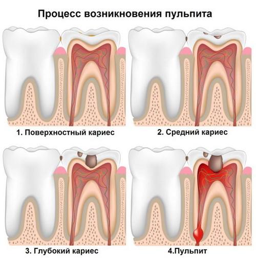 Болит и шатается зуб под коронкой thumbnail