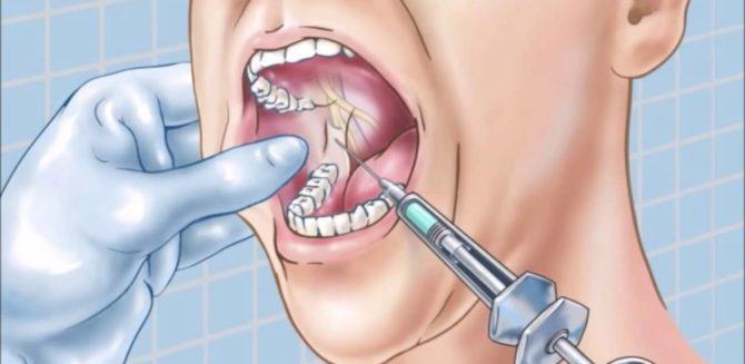 Проводниковая анестезия