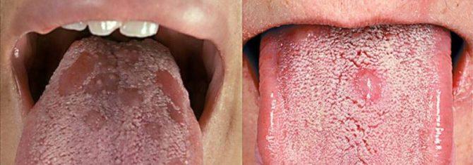 Проявление сифилиса на языке
