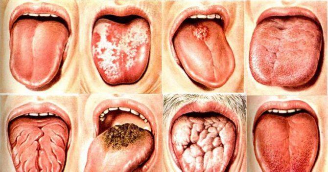 Проявления глоссита языка