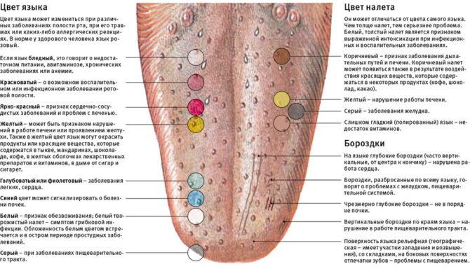 Проявления на языке и возможные диагнозы