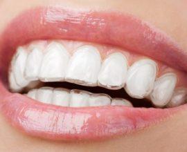 Прозрачная ортодонтическая капа