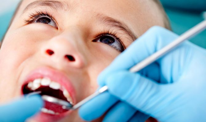 Пульпит молочного зуба у детей