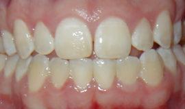 Пятна на зубах из-за неравномерного нанесения отбеливающего геля
