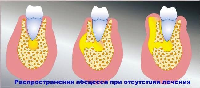 Распространение абсцесса при отсутствии лечения