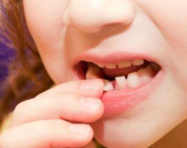 Расшатывание молочного зуба
