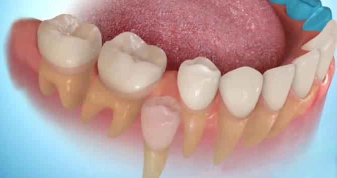 Растет новый зуб на месте удаленного