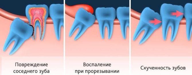 Разновидности проблемного роста зуба мудрости