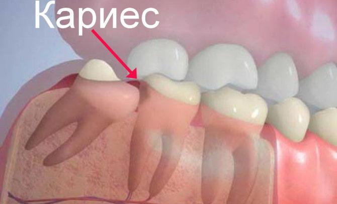 Развитие кариеса на втором моляре из-за неправильно прорезавшегося зуба мудрости
