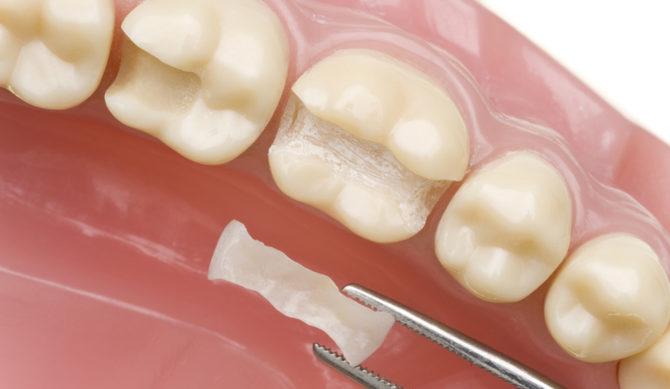 Реконструкция зубов с применением вкладок