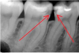 Рентген-снимок кариозного зуба