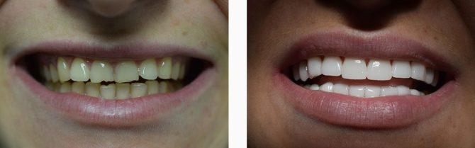 Реставрация скола зуба при помощи виниров