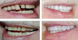 Реставрация зубов люминирами