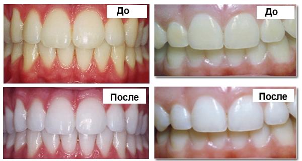 Результаты отбеливания в стоматологии