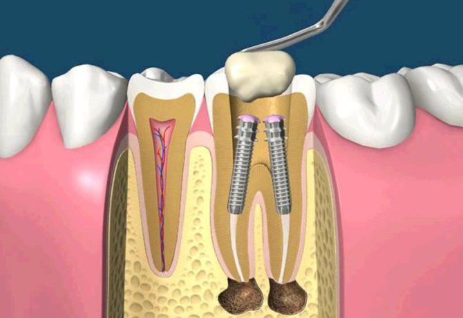 Штифт в зубе